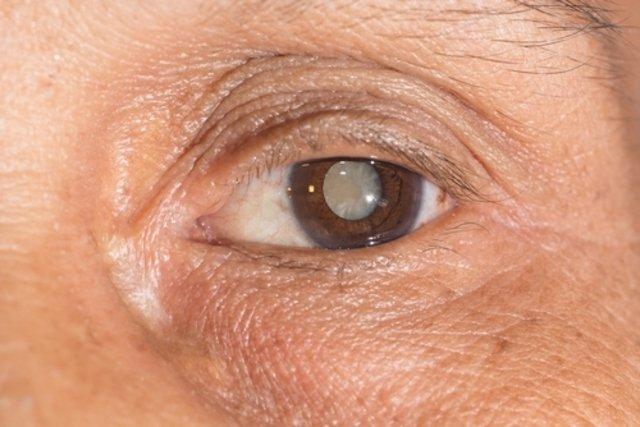 Mancha no olho característica da catarata