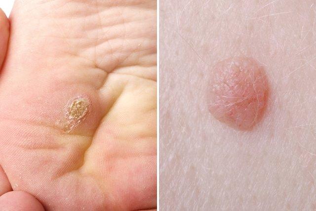 Síntomas de VPH en el hombre y en la mujer
