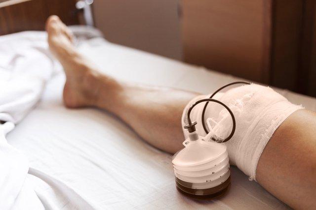 12 dúvidas mais comuns sobre o dreno cirúrgico