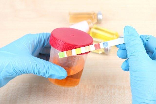Principais causas da Urina com espuma e O que fazer