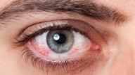 Cuántos días dura la conjuntivitis viral, alérgica y bacteriana