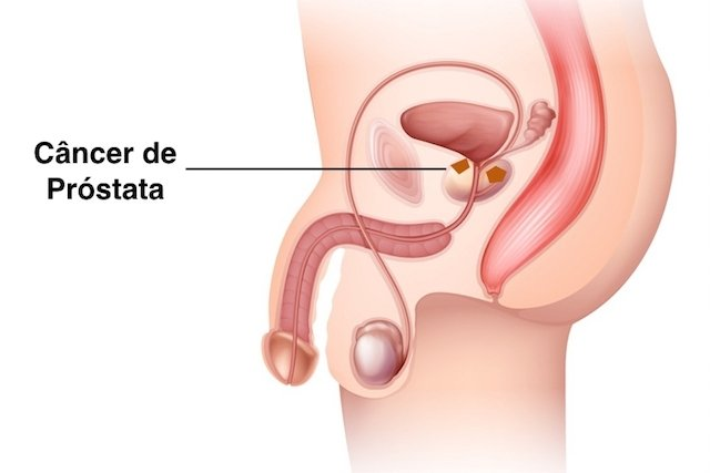 tumore prostata fertilitate