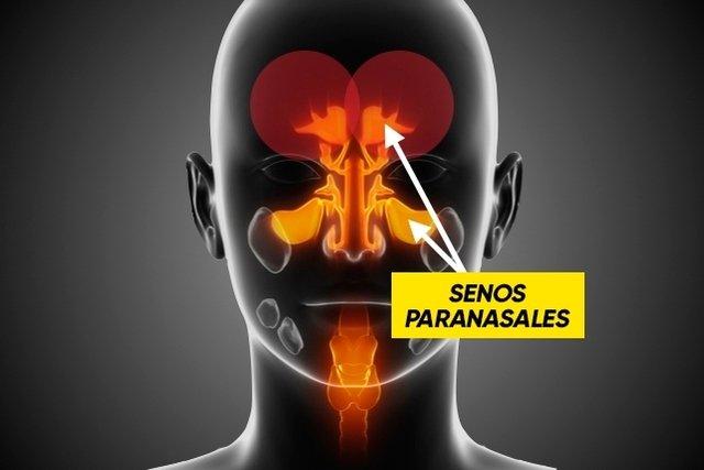 Senos paranasales que se inflaman en la sinusitis
