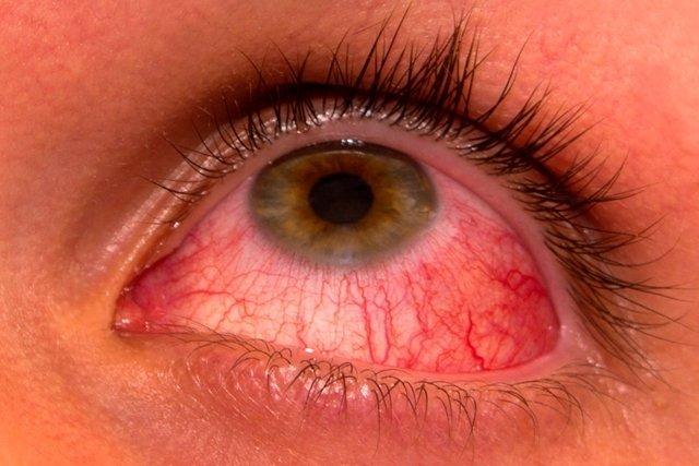 Quantos dias dura a conjuntivite viral, alérgica e bacteriana