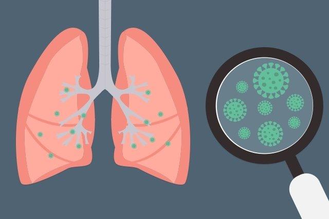 Pneumonia bacteriana: sintomas, transmissão e tratamento