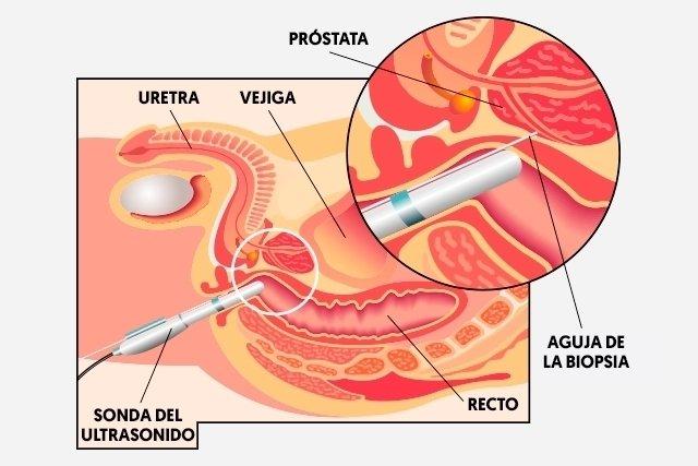 biopsia de próstata y prueba de PSA