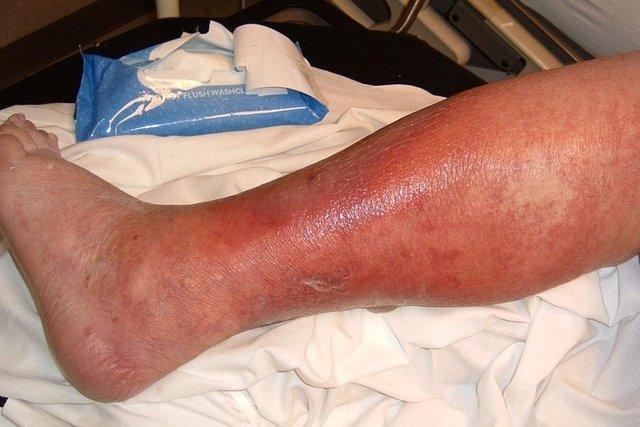 Celulite infeciosa
