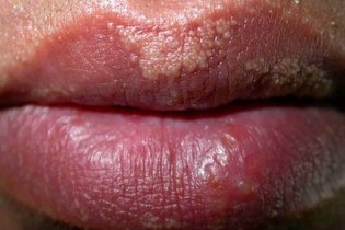 discoloration of vagina lips