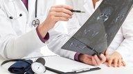 Qué es la Esclerosis Múltiple, tipos, síntomas y tratamiento