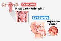 como curar una candidiasis genital