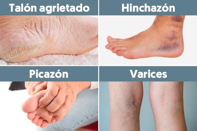Las sanguínea problema circulación de piernas en
