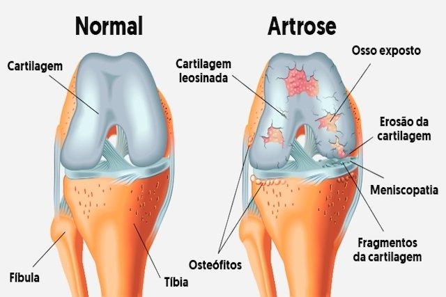 A causa o quadril que artrite do