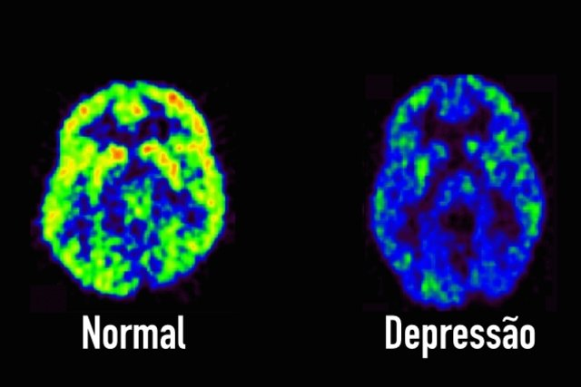 Conheça os 7 sinais que podem indicar depressão