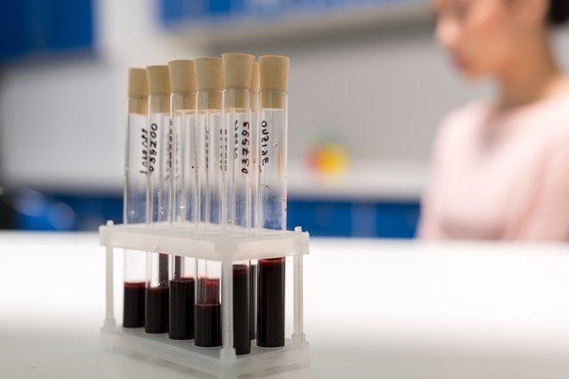 norma coagulogramă și varicoză aromamasla varicoză