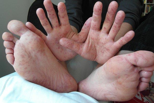 O que pode ser coceira no pé (e como acabar com ela)