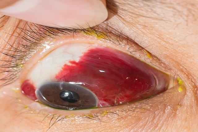 10 causas comunes de los ojos rojos y qué hacer