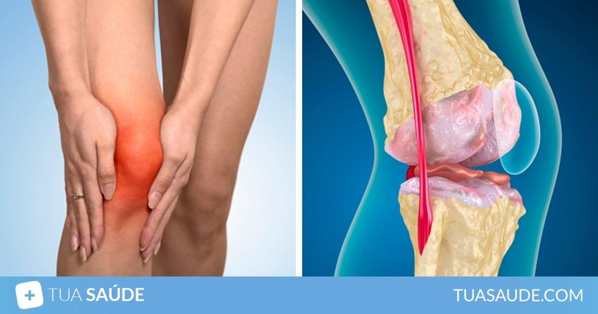 Da rigidez muscular tratamento crônico