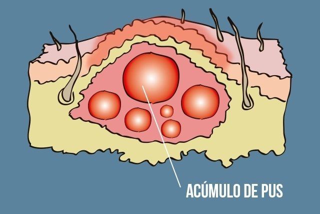 O que fazer é furunculose e como é feito o tratamento