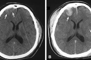 Ressonância magnética de uma contusão cerebral