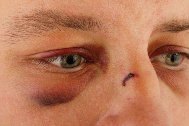 3 passos para eliminar um hematoma facial