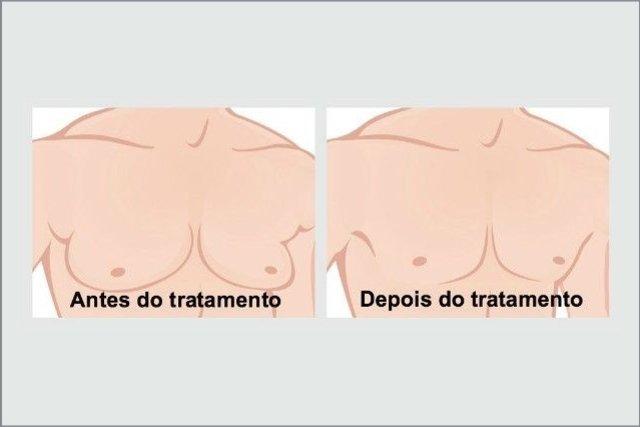 Como tratar o Aumento da mama no Homem