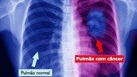 Qué puede causar dolor en los pulmones y qué hacer