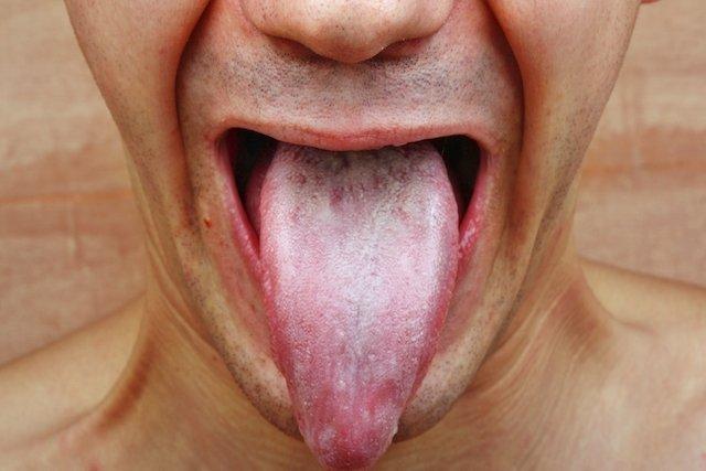 4 Tratamientos caseros para la Candidiasis