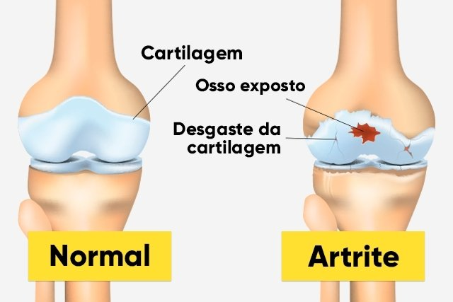 Como saber se é artrite