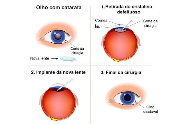 Cirurgia de Catarata