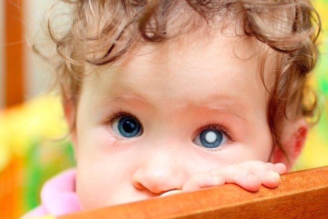 Mancha branca no olho: o que pode ser e quando ir ao médico