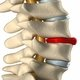 Osteophyte: Symptoms and Treatment