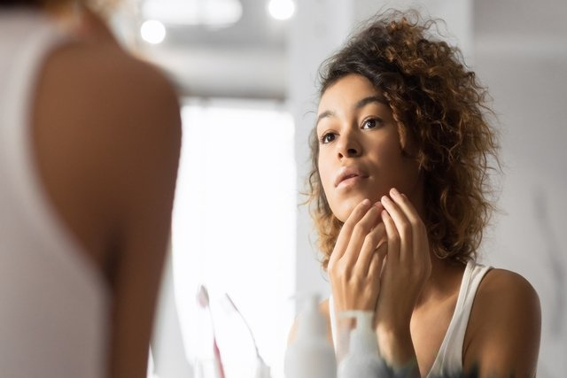 Principais remédios para tratar espinhas (acne)