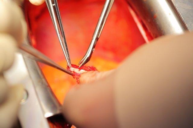 Cirurgia plástica íntima aumenta auto-estima e melhora a relação