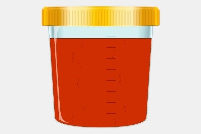 orina color naranja fuerte