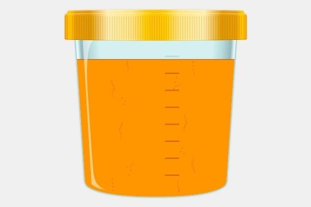 Color de orina por infeccion urinaria