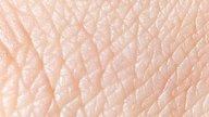 Conozca cuáles son los síntomas y cómo tratar la Larva Migrans cutánea