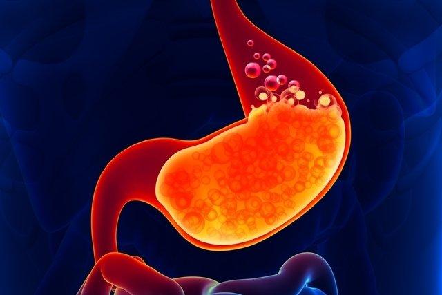 Como é feita a cirurgia para curar refluxo gastroesofágico