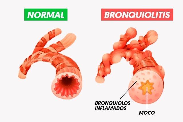 Bronquiolitis: síntomas y cómo evitarla