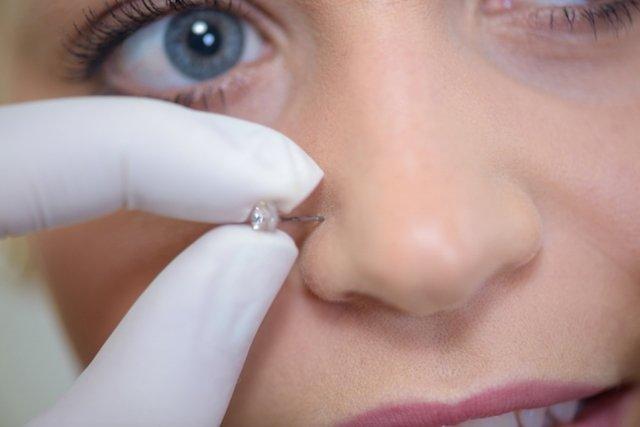 O que fazer quando o piercing está inflamado