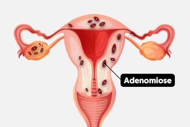 O que é a adenomiose, sintomas e possíveis causas