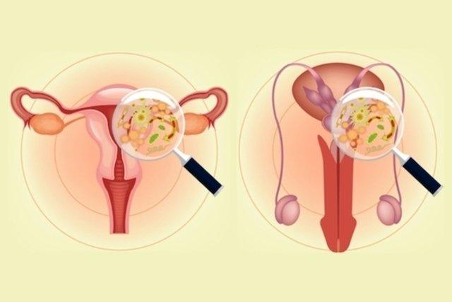 Sintomas de Gonorreia na mulher e no homem