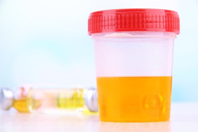 eliminacion de proteinas en la orina durante el embarazo