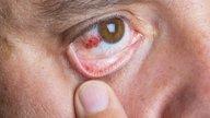Derrame ocular: causas, sintomas e como tratar
