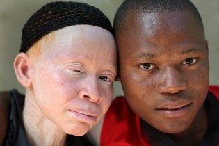 Entenda melhor o que é o Albinismo