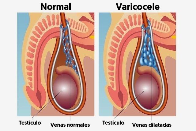el varicocele puede causar prostatitis