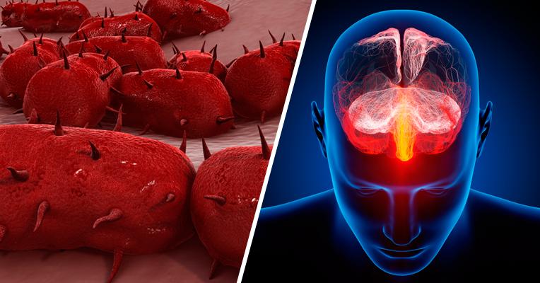 Grave parasitas nos sintomas de pessoa