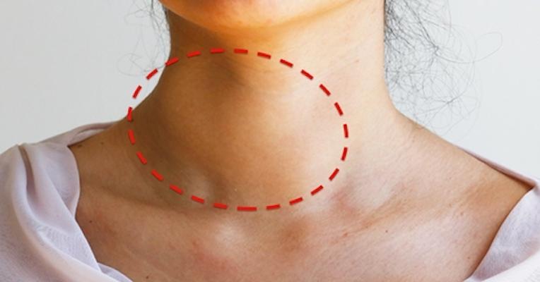 nodulo benigno na tireoide sintomas