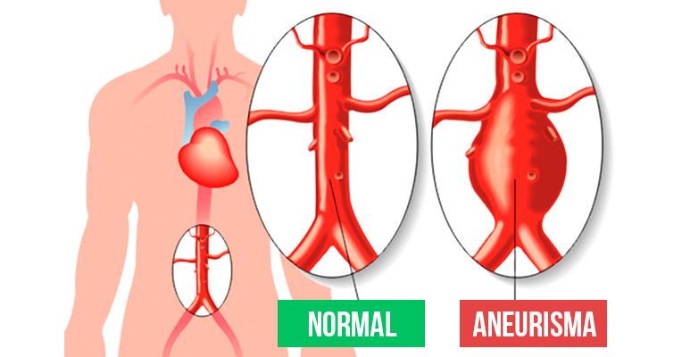Resultado de imagem para aneurisma