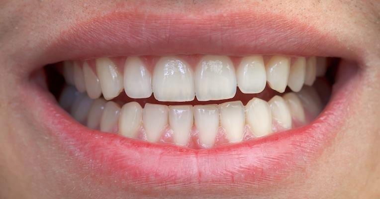 Como Tirar Tartaro Dos Dentes Em Casa Tua Saude
