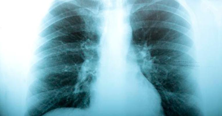 Gripe vira Pneumonia? - Tua Saúde